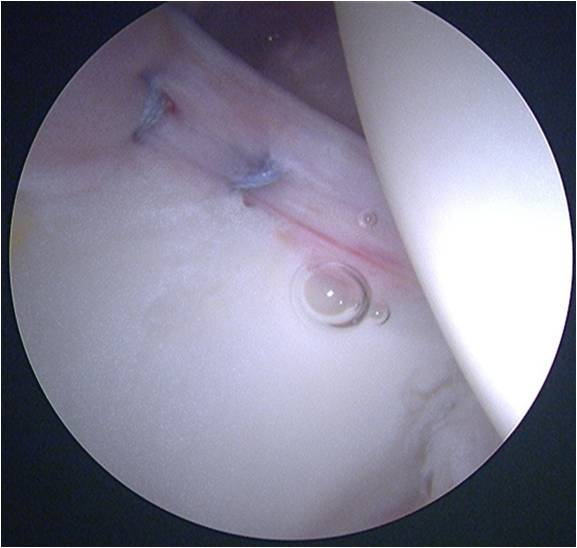 Labral Repair Hip arthroscopy for treatment of an acetabular labral tear in a female dancer