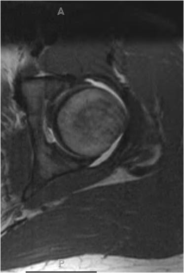 MR1 Hip arthroscopy in an 18 year old hockey goalie with femoracetabular impingement and labral tear