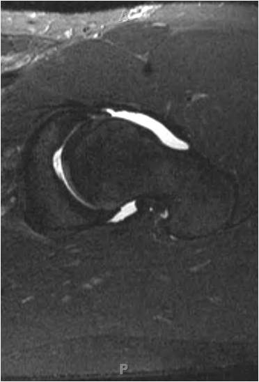 MR2 Hip arthroscopy in an 18 year old hockey goalie with femoracetabular impingement and labral tear