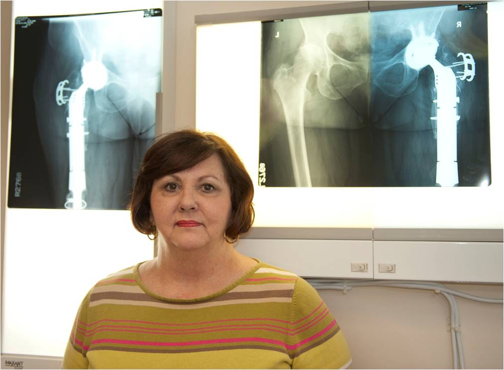 Revision hip replacement for treatment of chronic infection and periprosthetic fracture in a middle-aged female patient