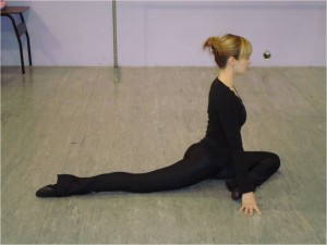 Dancer Hip arthroscopy for treatment of an acetabular labral tear in a female dancer