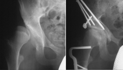 Severe acetabular dysplasia and nine years after periacetabular osteotomy